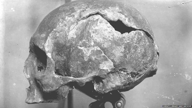 St Magnus skull found on Orkney